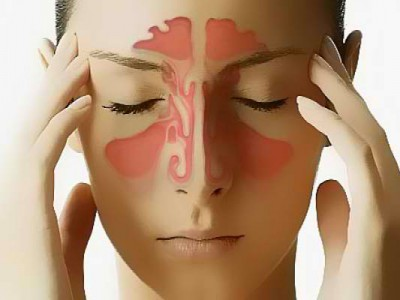 Ιγμορίτιδα: Τα συμπτώματα και η θεραπεία