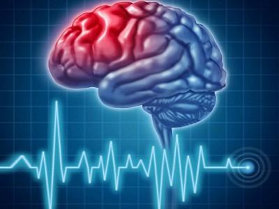 Μπορεί να προληφθεί το εγκεφαλικό επεισόδιο;