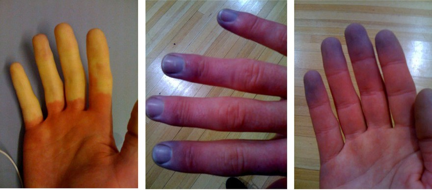 Raynaud_phenomenon