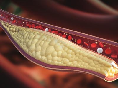 Ποια είναι τα σημάδια της υψηλής χοληστερίνης;
