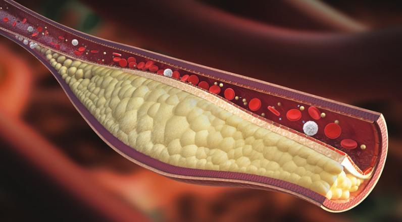 Τα σημάδια της υψηλής χοληστερίνης